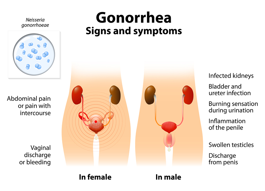 gonorrhea statistics in the usa stdaware blog. Black Bedroom Furniture Sets. Home Design Ideas