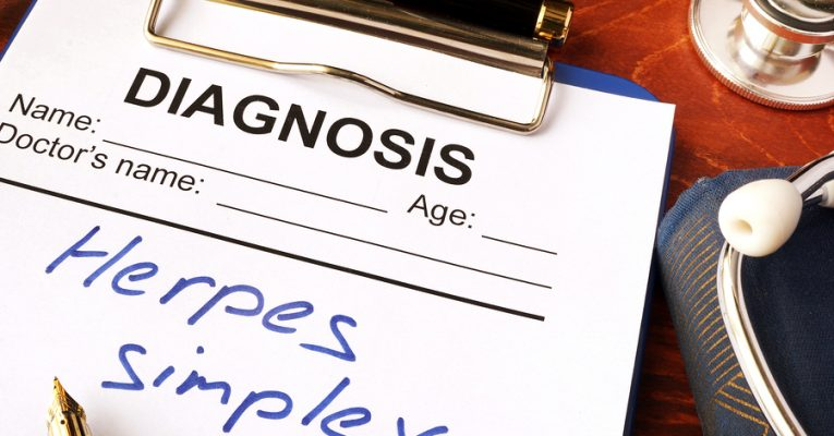 How Common is Herpes?